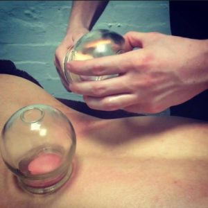 Flame cupping